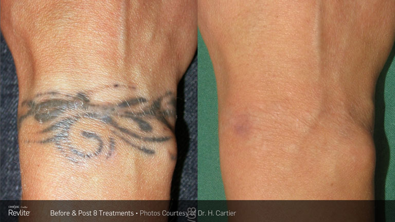 8cd8fc20c Tattoo Removal | Luxe Laser Center