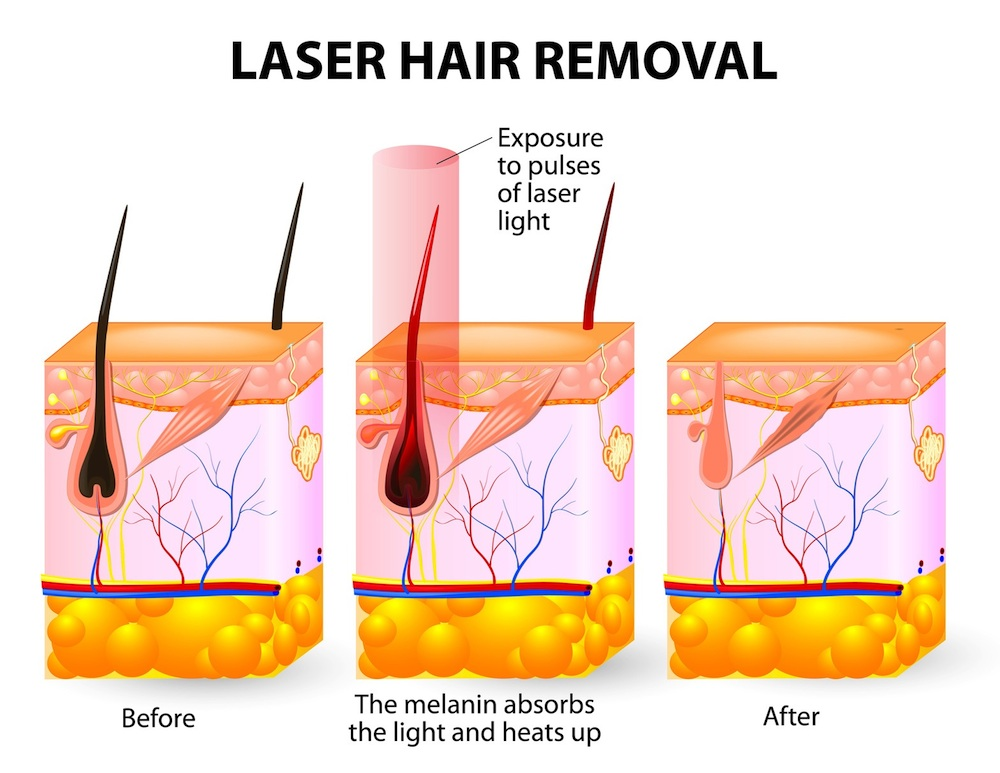 Hair Removal Luxe Laser Center